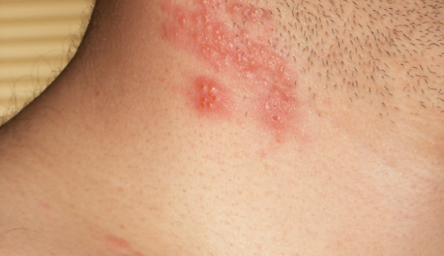 A herpes zoster outbreak on a man's neck and cheek.