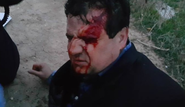 Joint List chairman Ayman Odeh was wounded in the clashes in Umm al-Hiran.