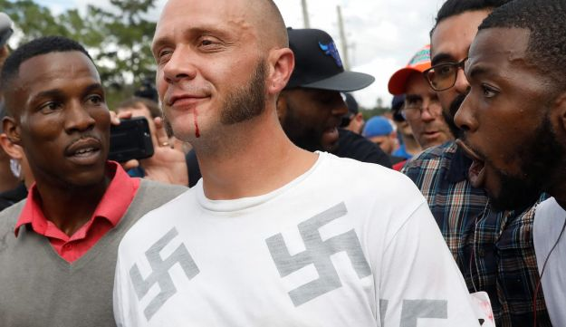 A man walks with a bloody lip as demonstrators yell at him outside the location where Richard Spencer is delivering a speech, Gainesville, Florida, October 19, 2017.