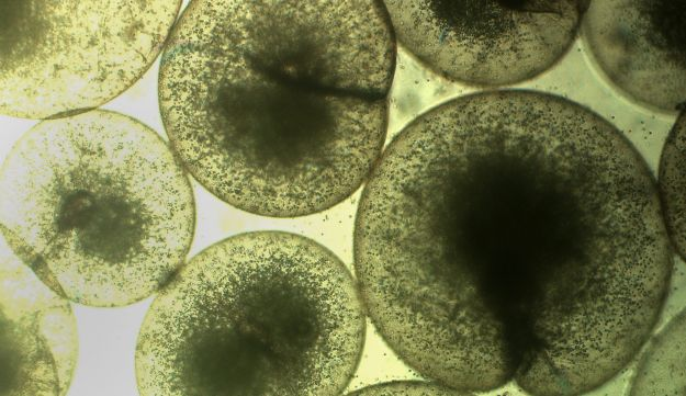 Algae of the Noctiluca scintillans species seen through a microscope at 50x. March 2, 2017.