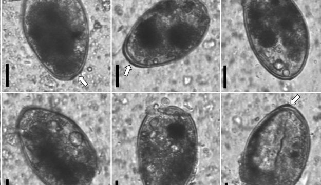 Ancient Paragonimus eggs discovered from the inner-trabecular material of liver mass. Arrows indicate abopercular thickenings. Scale bars in each egg plate = 20 μm.