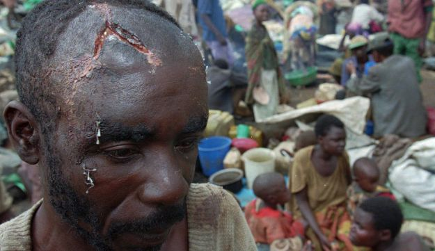A Hutu refugee with open machete wounds on his head standing amid a group of fellow refugees who remain surrounded by the Tutsi Army, in a 1995 file photo in southern Rwanda.